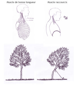 raccourcissements-musculaires