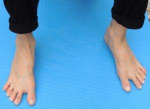 Retrouver la capacité d'écarter les orteils